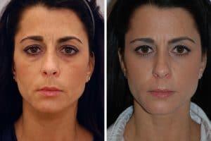 Prix blepharoplastie Tunisie