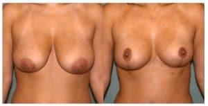 Reduction mammaire prix Maroc