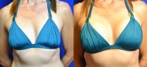 Implants mammaires : infos pour des prothèses sans