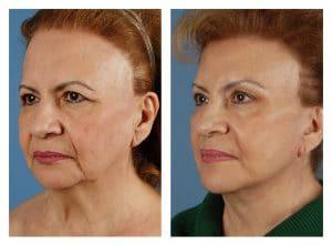 Prix lifting visage Maroc