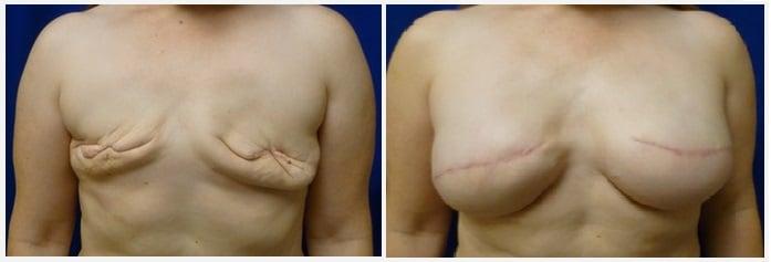 reconstruction mammaire Tunisie apres mastectomie