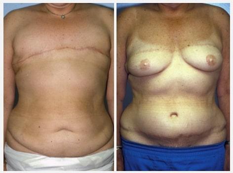 reconstruction mammaire Maroc photos