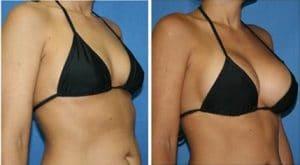 implant mammaire avant apres au Maroc