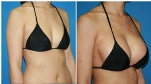 implant mammaire avant apres Maroc