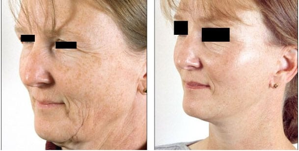 lifting cervico-facial avant apres