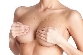 technique réduction mammaire