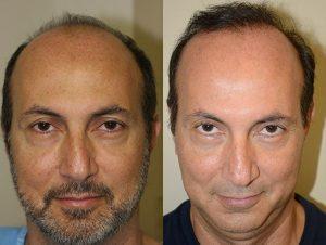 Greffe cheveux en Tunisie