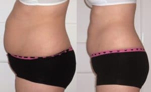 Liposuccion laser en Tunisie