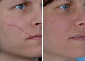 Traitement cicatrices Maroc