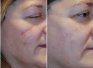 Traitement des cicatrices au Maroc