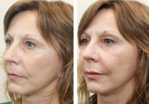 lipofilling visage au Maroc