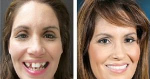 implantation dentaire au Maroc