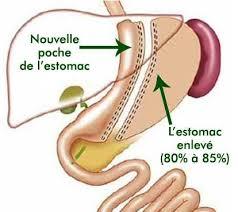 Sleeve gastrectomie Maroc
